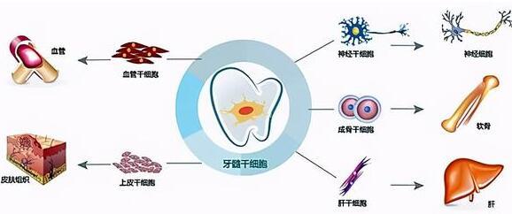牙髓干细胞治疗银屑病的临床研究与原理