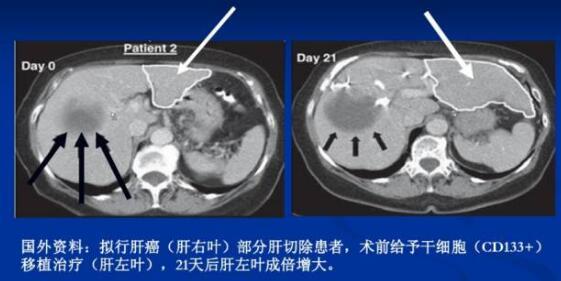 间充质干细胞治疗肝硬化的临床案例与疗效
